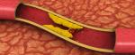 Cholesterol